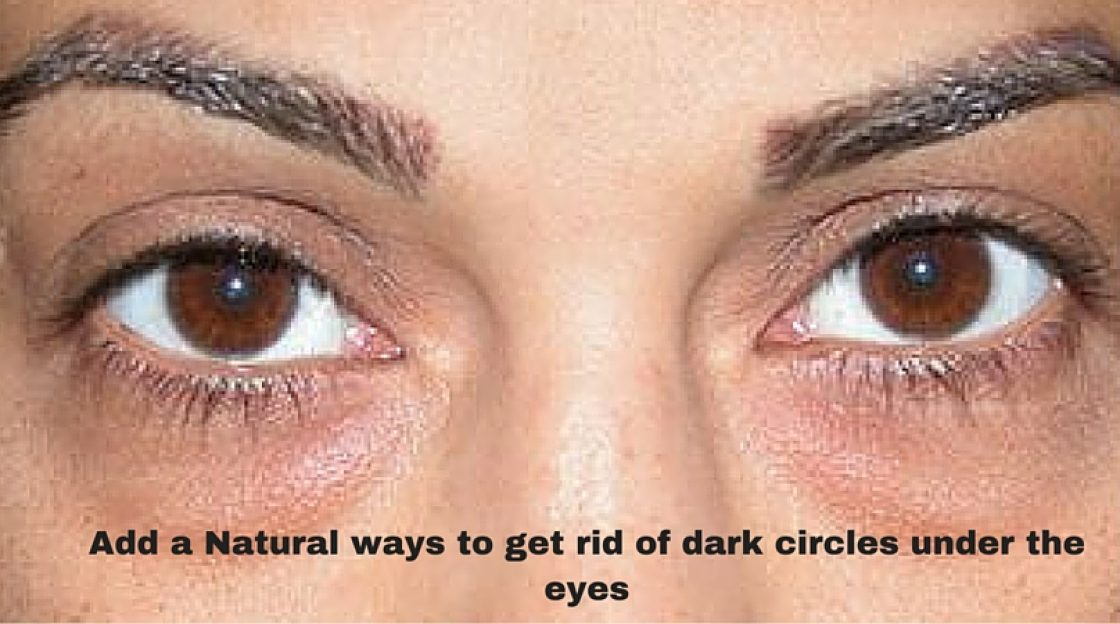 Natural ways to get rid of dark circles under the eyes