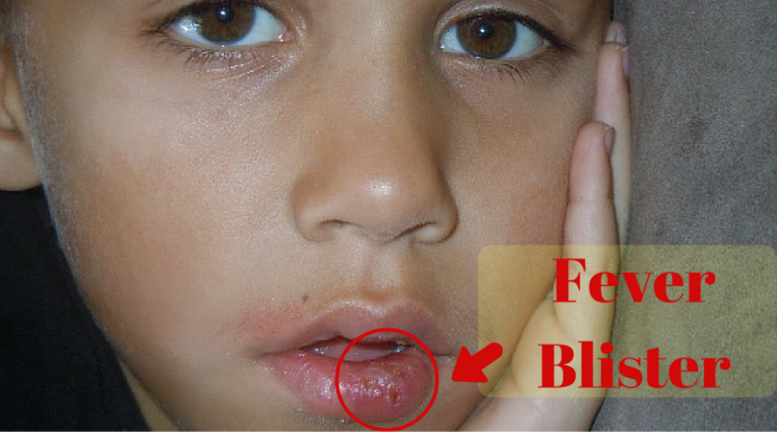 Fever Blister- Causes, Symptoms and Treatment