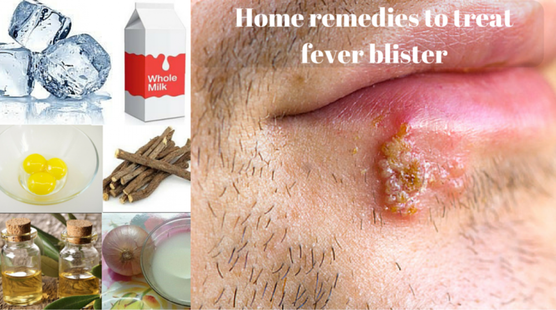 Home remedies to treat Fever Blister