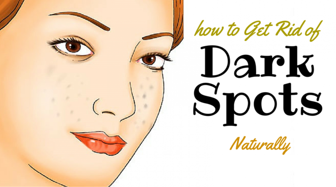 Best Dark Spot Treatment, How to Get Rid of Dark Spots Naturally