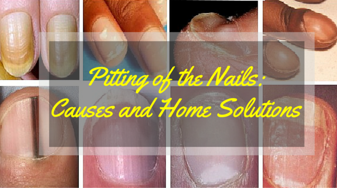 Pitting of the Nails: Causes and Home Solutions